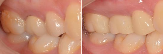 24歲的吳小姐從事模特兒工作,某天她在吃東西時,後牙的牙齒突然斷裂讓她非常不舒服,因此來到日光翡麗植牙診所求診,經過檢查,醫師認為她的兩顆臼齒之前曾做過根管治療,但是並沒做假牙保護,才會發生牙齒斷裂的情形。醫師更進一步發現,另一顆金屬假牙也有二次蛀牙及牙齦變色萎縮的狀況,因此醫師一併裝上全瓷冠矯正這三顆問題牙齒。不但解...