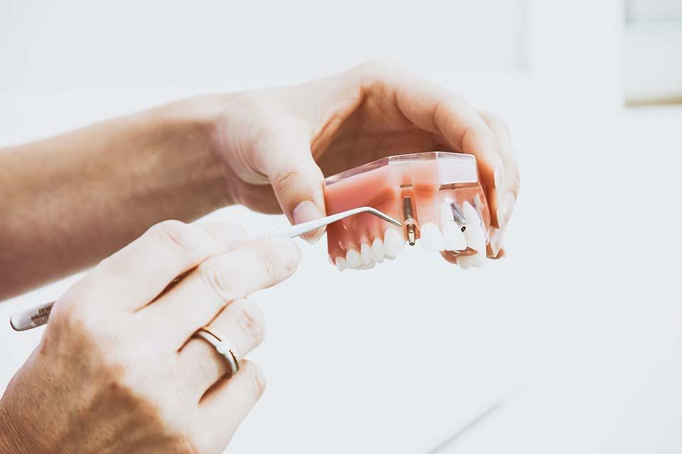 牙冠品質不同會影響牙冠價格嗎?答案是會的;那麼,市面上牙冠材質這麼多,鑲金、金屬、陶瓷等…到底假牙該選哪一種?2020牙冠套價錢怎麼算?就讓日光翡麗新竹牙醫馬瑞宏院長,教你如何聰明挑選,避免白花錢。牙冠怎麼挑?鑲金、金屬、陶瓷,牙冠到底該選哪一種?牙冠也就是固定假牙,隨著製作技術進步,從傳統金屬假牙,也就是「滿口金牙」…