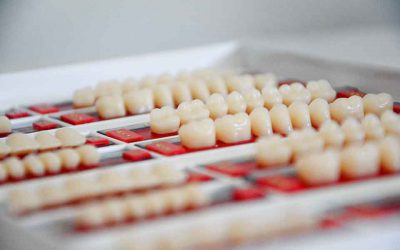 植牙過程分享|缺牙半年經醫師整治,終重現自信笑容
