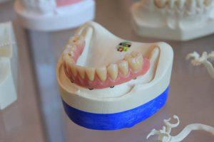 「我只是牙痛蛀牙去看牙醫,不是補起來就好嗎,看到最後卻要裝牙冠套?牙冠套還分全瓷冠、金屬瓷牙、鑲金的,搞得我霧煞煞!」新竹全瓷冠日光翡麗植牙院長馬瑞宏說,許多診所患者聽到醫師給的建議,通常都是一臉疑惑,其實醫師的意見,都是針對民眾牙齒狀況,給出最佳診療方案。那麼「全瓷冠」究竟是何方神聖,讓院長親自說明。什麼是全瓷冠?什