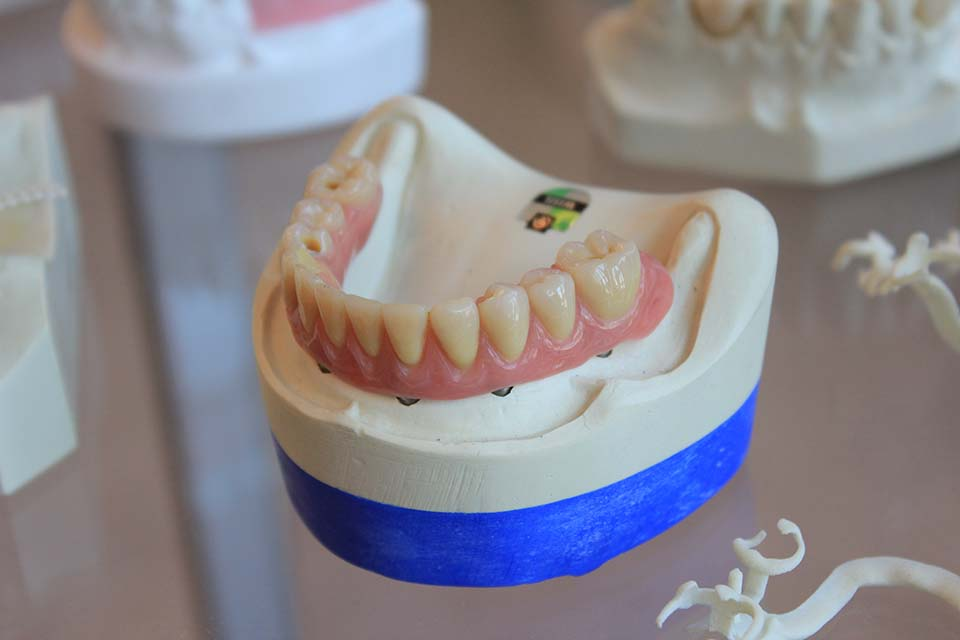 全瓷冠材質種類有哪些特色?全瓷冠牙套價格會很高嗎?