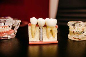 「全瓷牙冠的透明度、齒緣光澤的通透感,幾乎與真牙真偽難辨!」上述全瓷冠優點,讓許多民眾一邊哀悼已經萬劫不復的寶貴真牙,一邊看著牙醫診所的全瓷牙冠的廣告單,心裡納悶著,幾乎每間診所招牌都有的「全瓷牙冠」,真的有這麼神?新竹日光翡麗牙醫馬瑞宏院長,聽見您的心聲了!究竟「全瓷冠是什麼」?「全瓷冠優點」有哪些?那些人才需要做...