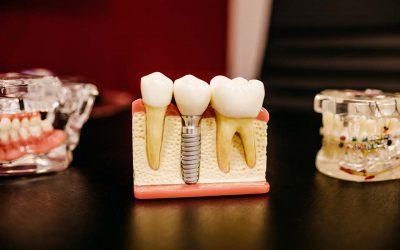 全瓷牙冠是什麼?有哪些優缺點是我應該注意的嗎?
