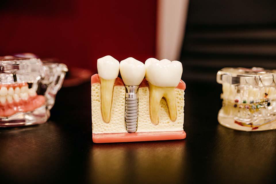 植牙發炎不舒服,醫師告訴我植牙發炎怎麼辦?