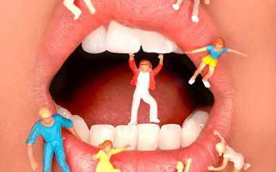 全瓷冠假牙價格落差大,影響因素是跟全瓷冠壽命或材質有關嗎?
