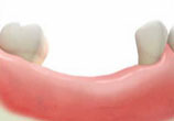 臼齒缺牙不補會怎樣?小心咀嚼無力難消化全身疾病找上你