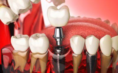 臼齒拔掉一定要植牙嗎?臼齒植牙會不會很痛?