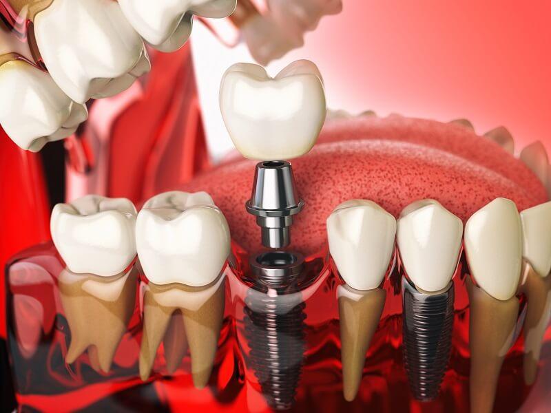 【植牙平均壽命】植牙可以用多久?聽醫師來解析