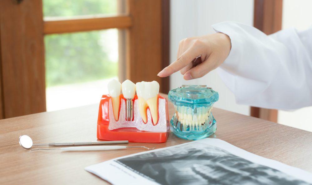 牙醫師推薦教你怎麼選好的牙醫診所,原來牙醫推薦要注意那麼多?!