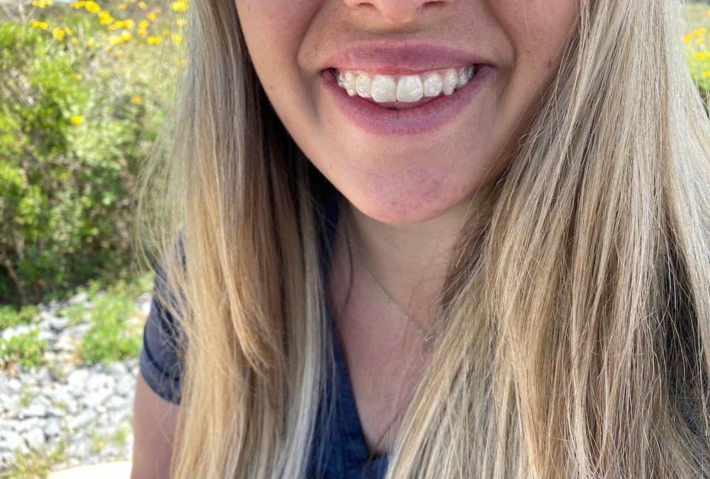 牙齒貼片看了心癢癢,但你了解牙齒貼片缺點嗎?